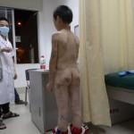 Cina, bambino picchiato per anni dalla matrigna: foto choc delle ferite