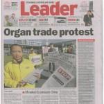 Prelievo forzato di organi da praticanti del Falun Gong