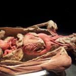 Real Bodies, a Roma 13 malori in due giorni per la controversa mostra di corpi