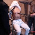 Cina-Liaoning: ingegnere con pelle lacerata a seguito della tortura